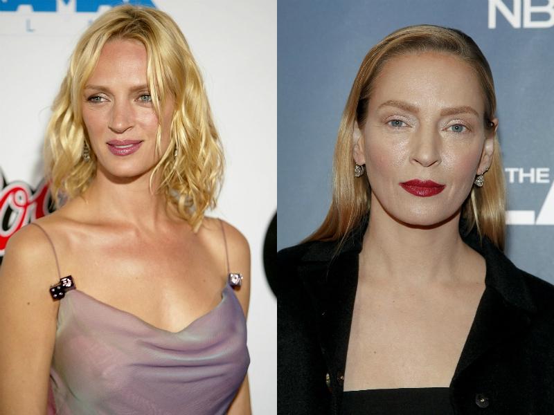 [FOTOS] 10 famosas que cambiaron sus rostros con cirugías ...