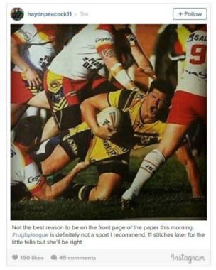 El jugador de rugby que casi pierde el pene durante un partido en Francia