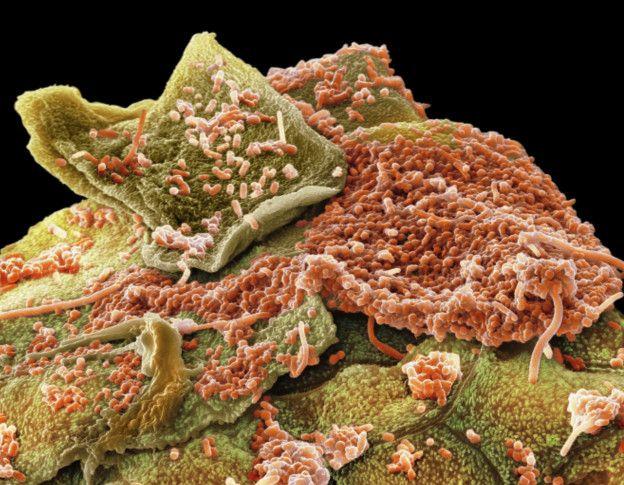 Para distinguir los microbios que se encuentran dentro de las encías, los dientes y en el interior de la mejilla, se utilizaron colorantes artificiales.