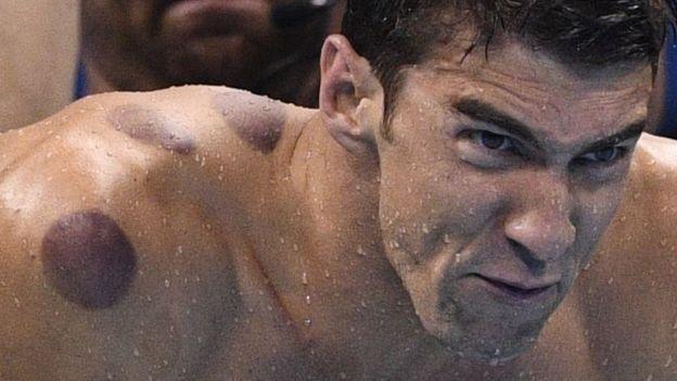 Al parecer Phelps utiliza la versión más dolorosa de la terapia, que requiere calor.