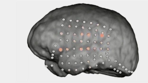 Los expertos pudieron ver en tiempo real cómo se activan partes relacionadas a la audición