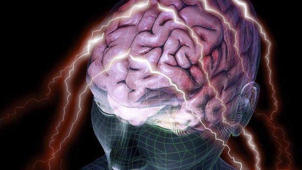 ¿Cuanto de tu personalidad está definida por la estructura de tu cerebro?