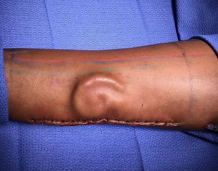 Una soldado crece una oreja nueva en el brazo en EU