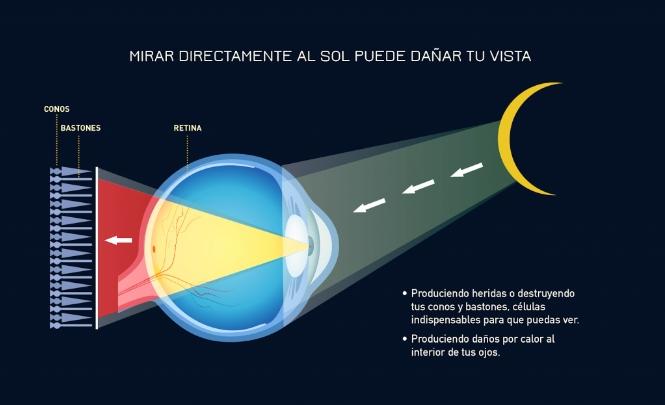 Resultado de imagen para daños por mirar eclipse solar