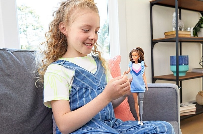 Barbie lanza muñeca con vitiligio, sin cabello y con prótesis: la nueva apuesta por la diversidad