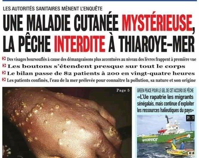 Misteriosa enfermedad de la piel afecta a cientos de pescadores | Tele 13