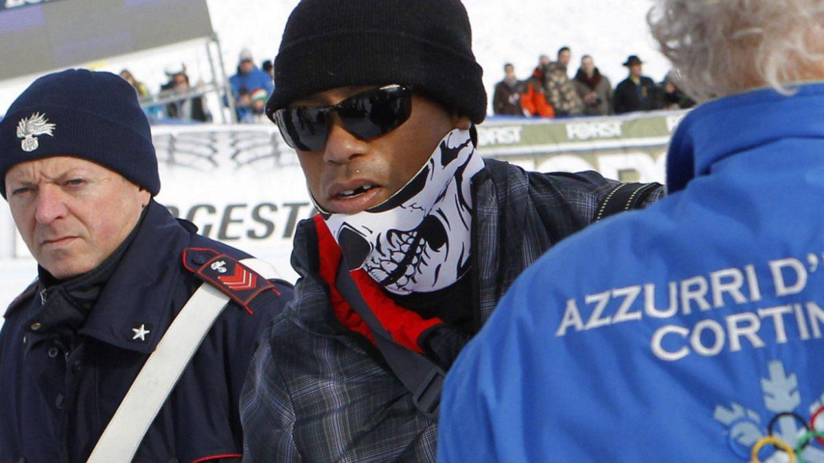 Tiger Woods pierde un diente tras golpe accidental con una cámara