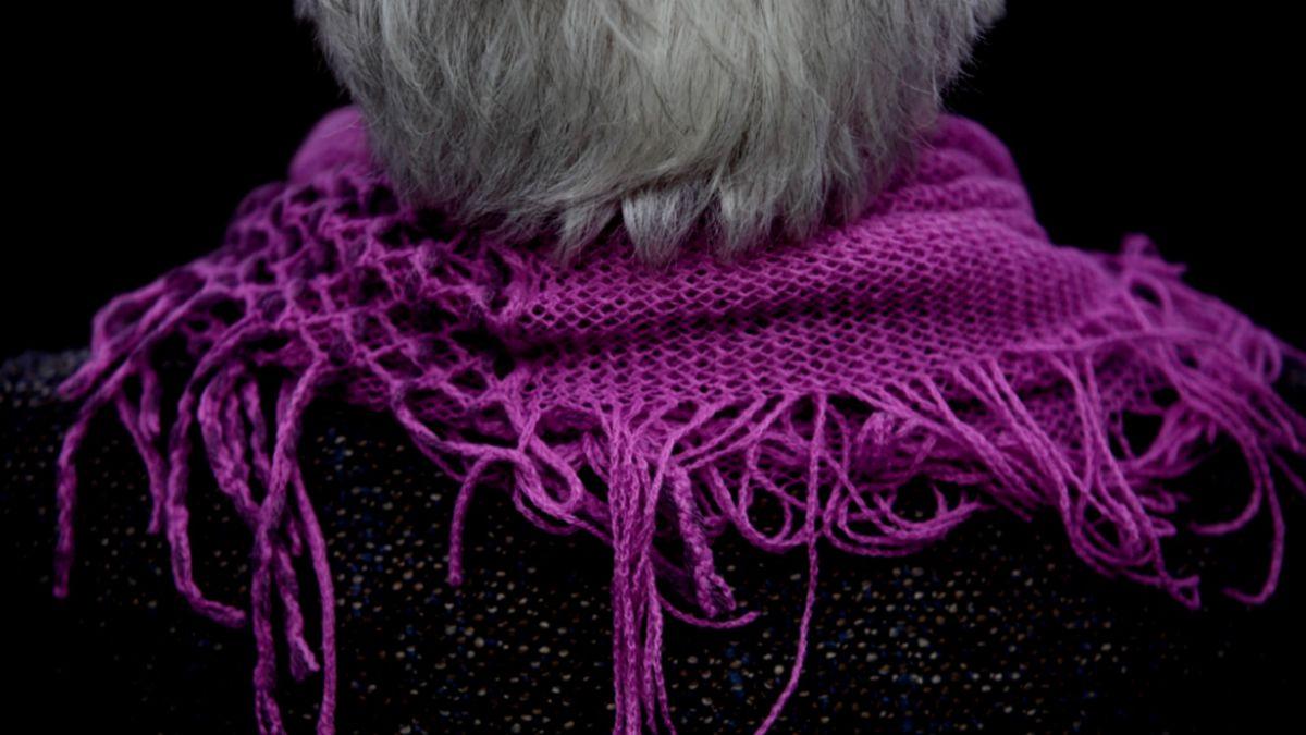 Científicos mexicanos proponen prueba cutánea para detectar el Alzheimer