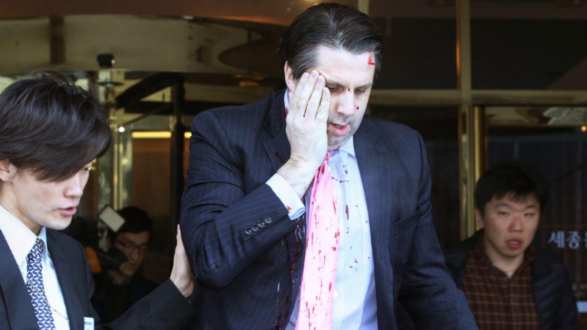 Embajador de EE.UU. en Seúl sufre grave ataque de sujeto armado
