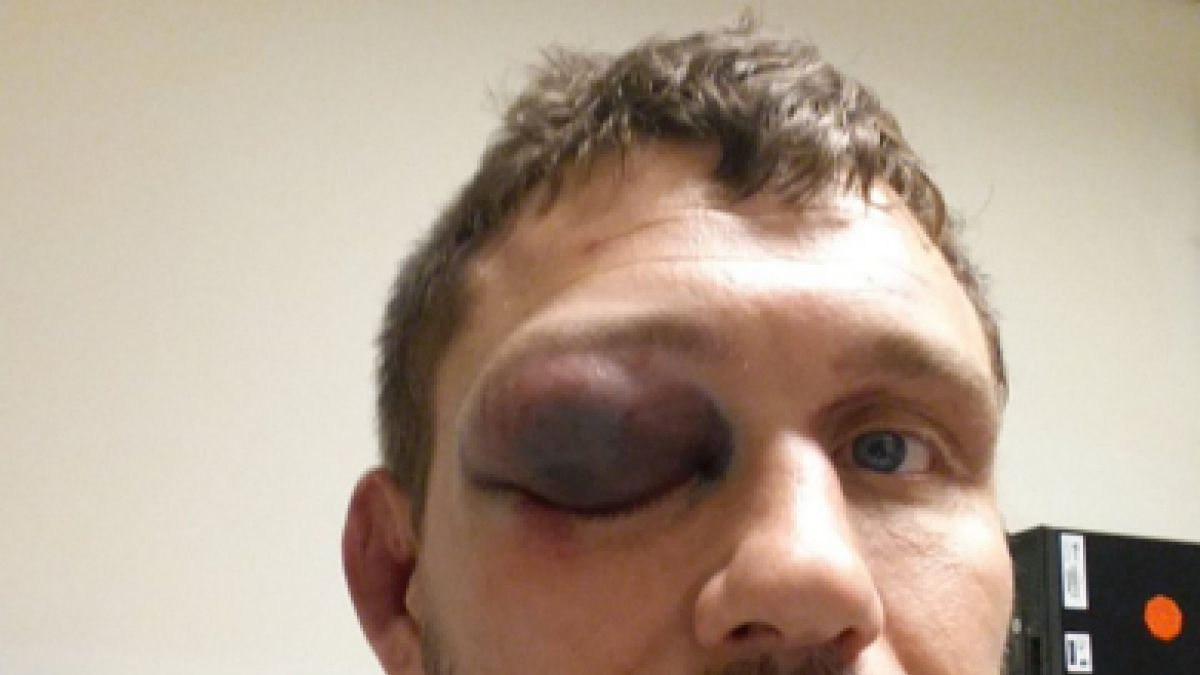 Luchador de la UFC muestra su grave lesión en el ojo tras combate