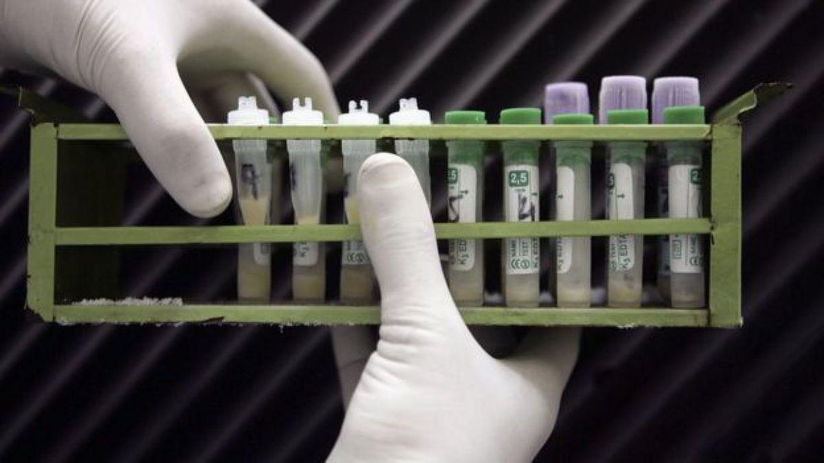 Ministerio de Salud analiza viabilidad de vender test rápidos de VIH