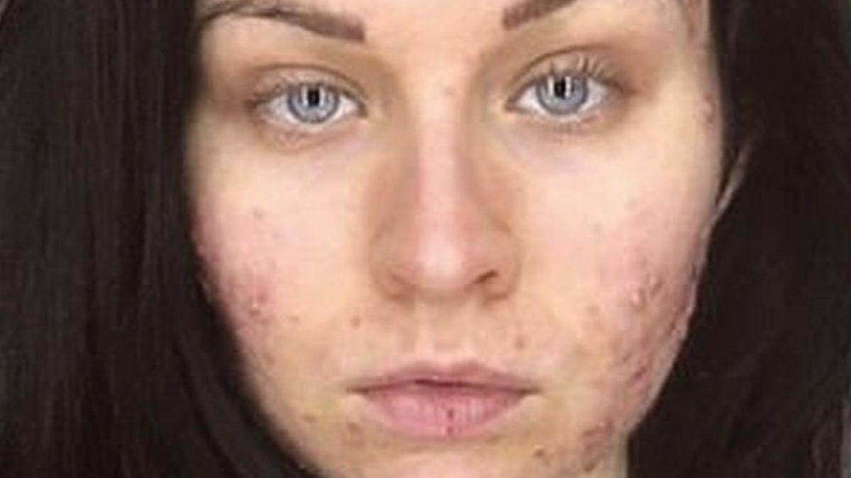 Me desperté y tenía bultos en el mentón y en la frente: la joven a la que le apareció acné severo