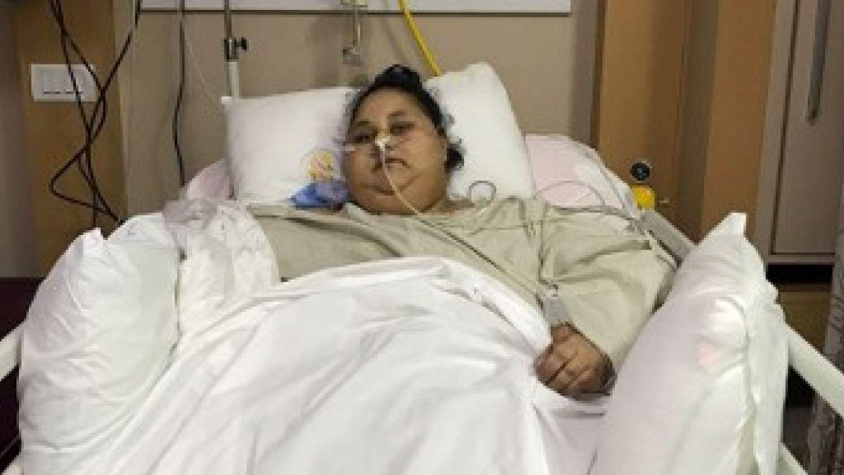 La mujer más obesa del mundo perdió 250 kilos tras operación