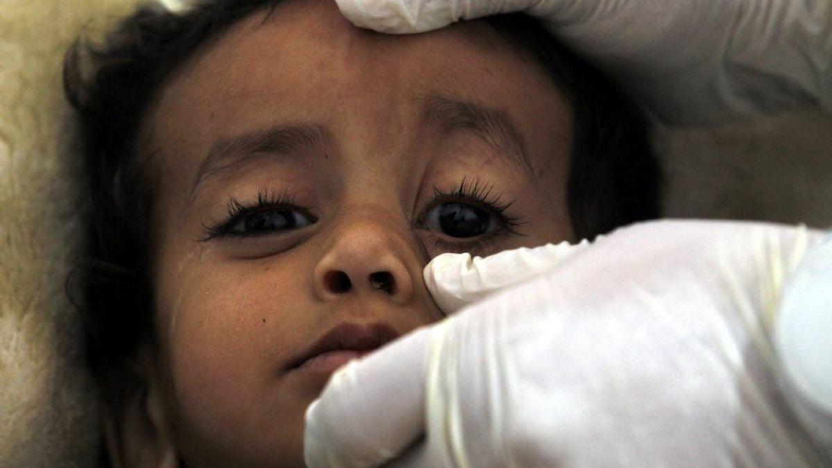 Casos de cólera en Yemen pueden alcanzar los 300.000 en agosto — Unicef