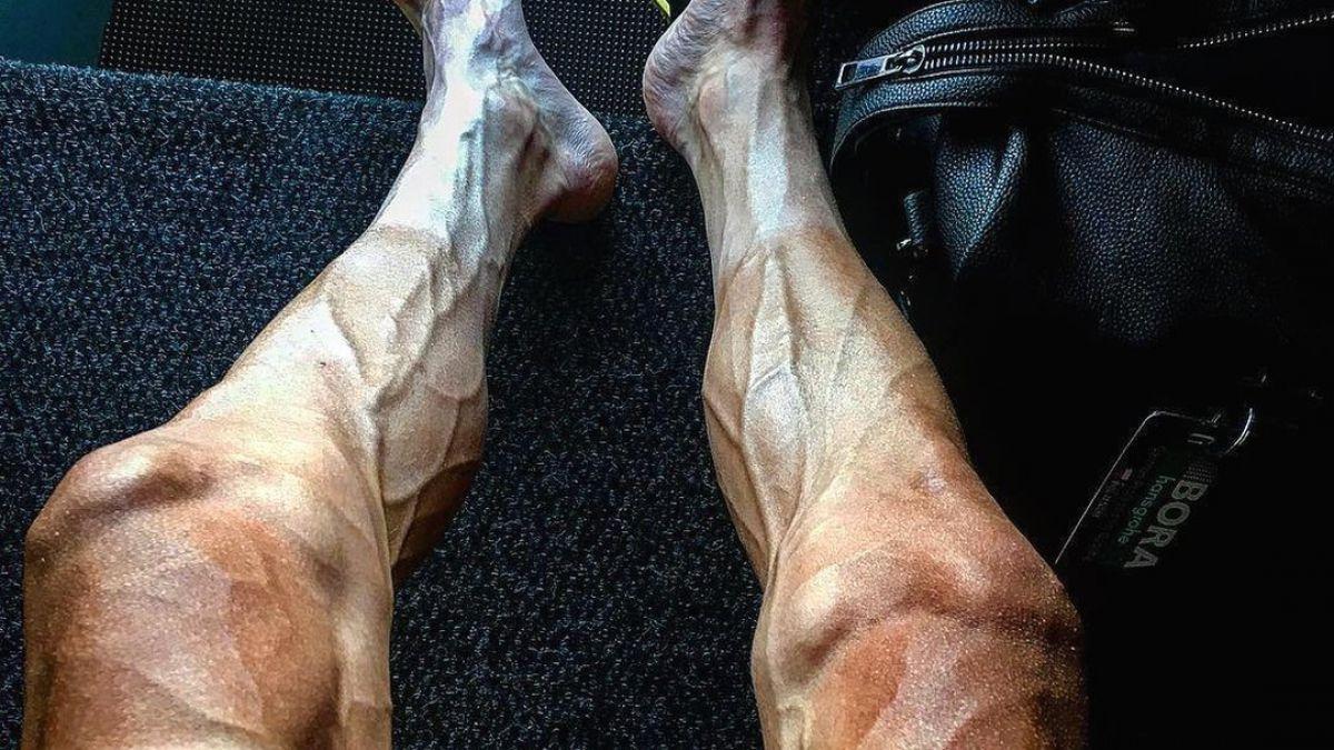 La impresionante imagen que muestra la transformación de las piernas ...