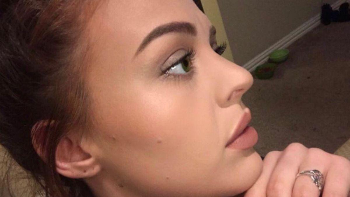 La angustia de una joven que puso en riesgo su vida por reventarse una espinilla