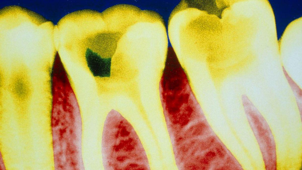 Descubren un nuevo uso potencial de la aspirina: reparar las caries