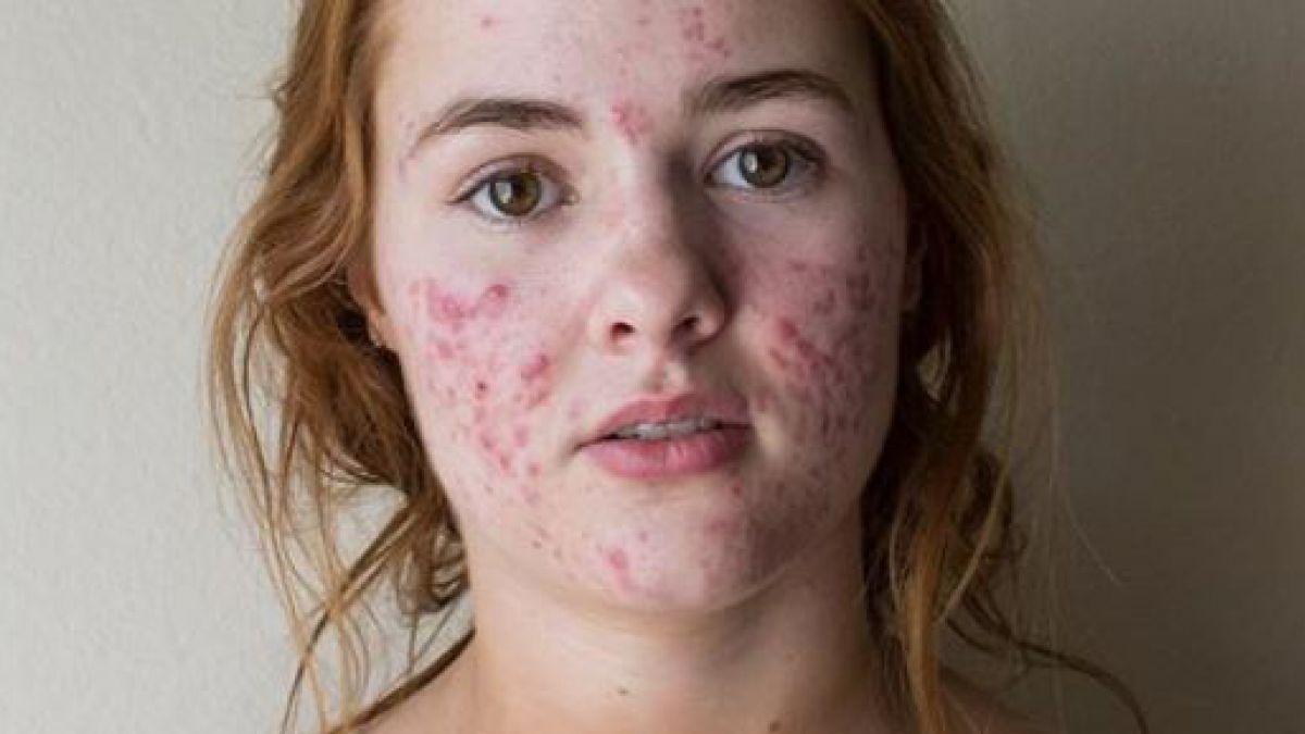 La increíble transformación de una joven con un agresivo cuadro de acné