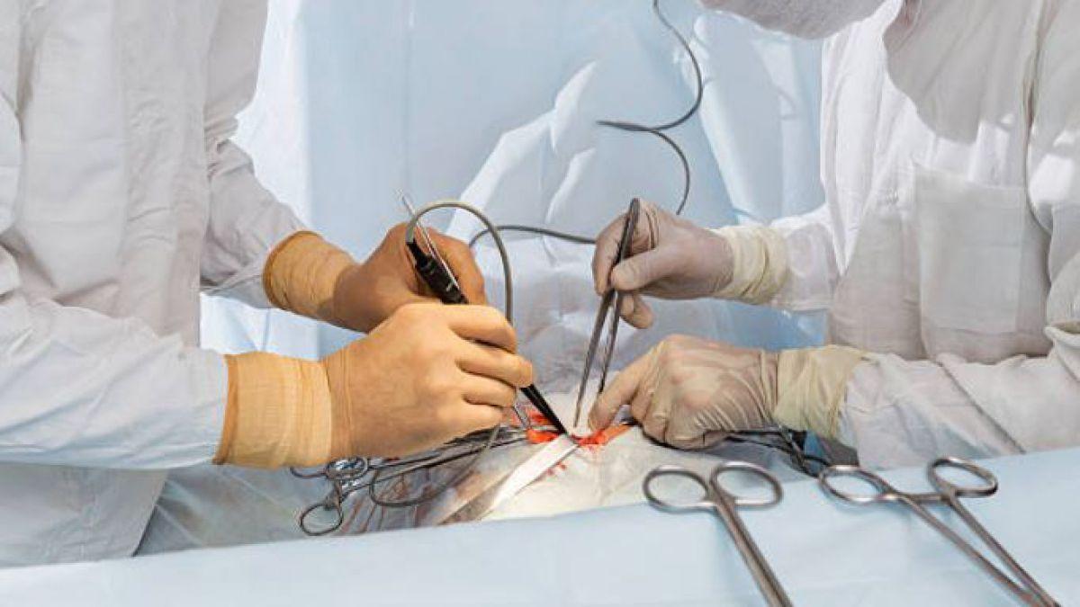 Cirujano admite haber puesto sus iniciales en dos hígados de trasplante