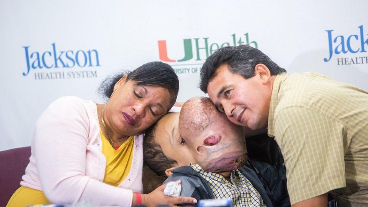 Muere niño tras retirarle tumor facial de 10 libras