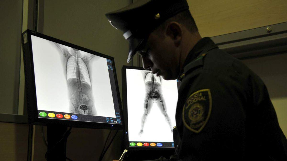 Una mujer se metió al escáner para no dejar su bolso
