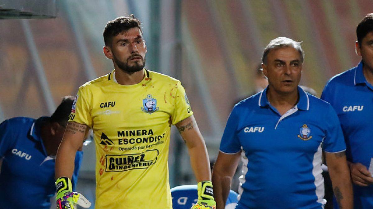 Paulo Garcés permanecerá en reposo por siete días tras sufrir una fractura nasal