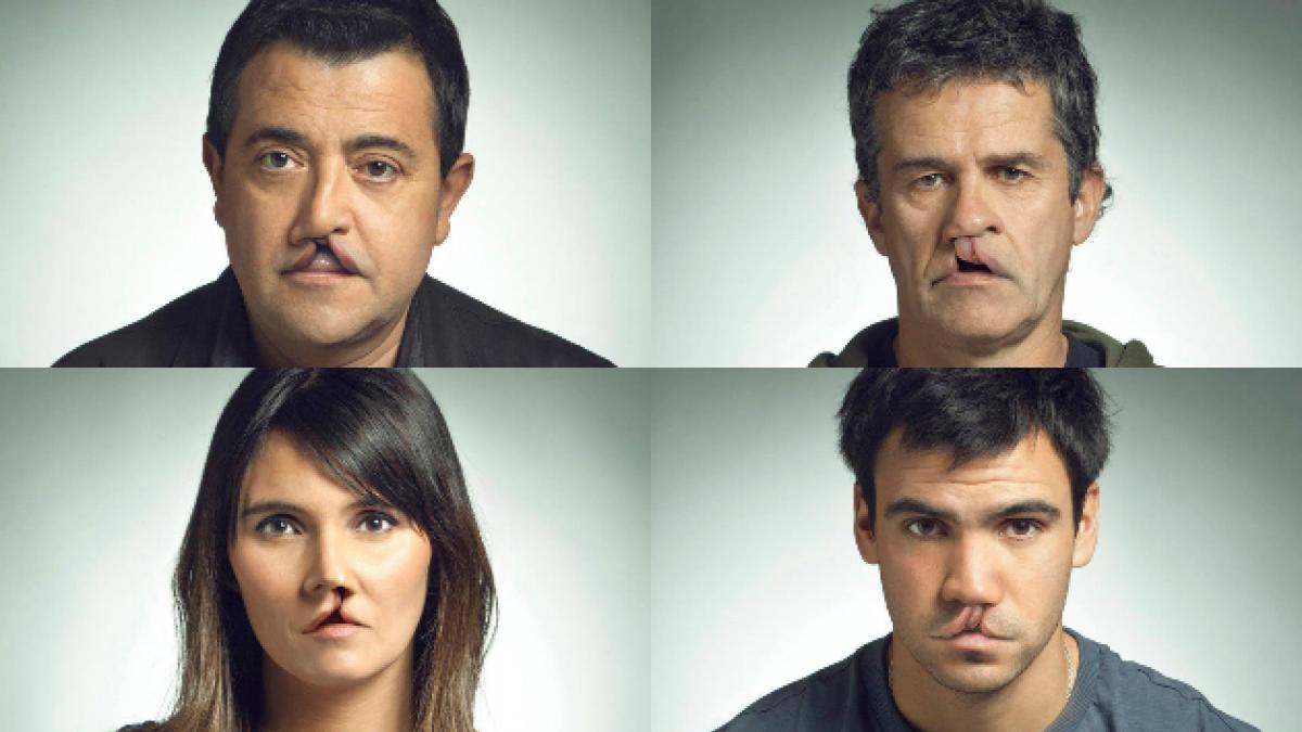 [FOTOS] Esta es la impactante campaña para concientizar sobre tratamiento del labio leporino