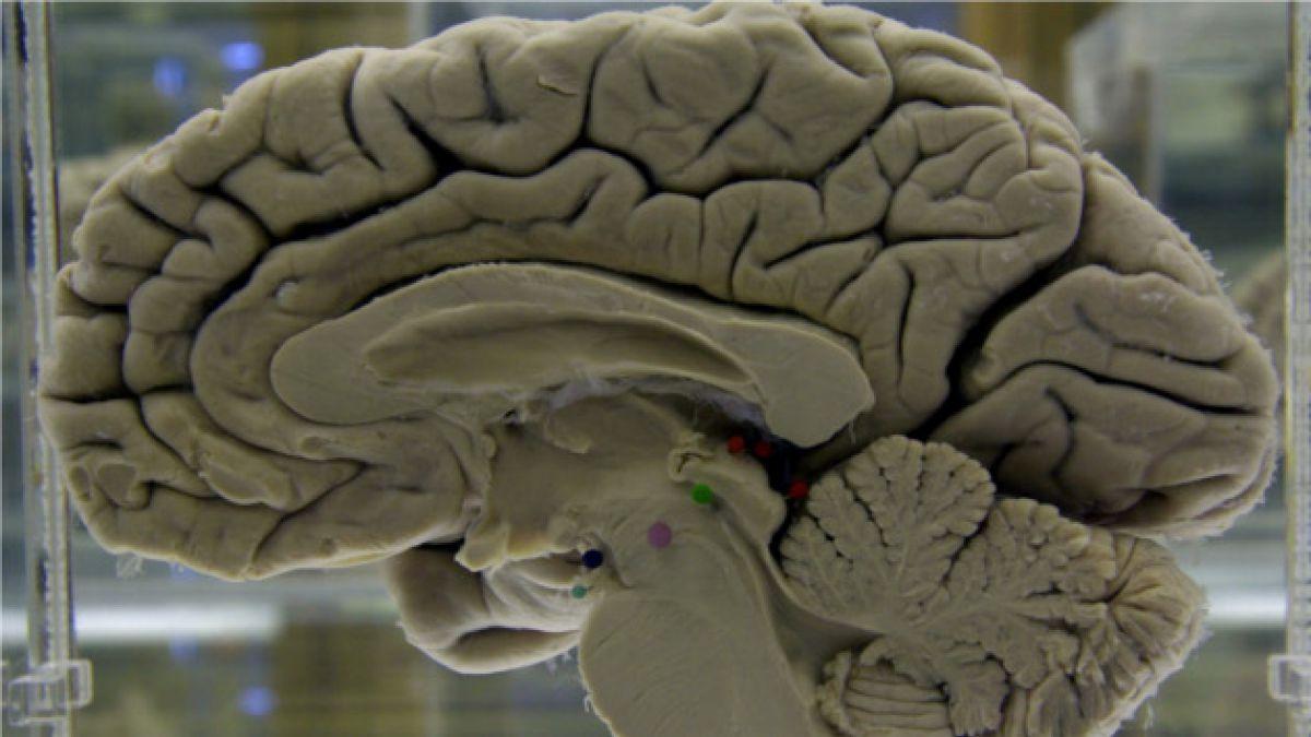 Tecnología satelital para analizar el mal de Alzheimer