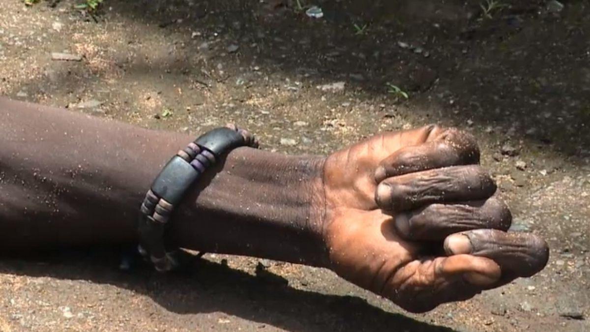 [VIDEO] Liberia: forenses que recogían cuerpo de víctima del ébola en la calle hallan que persona aú