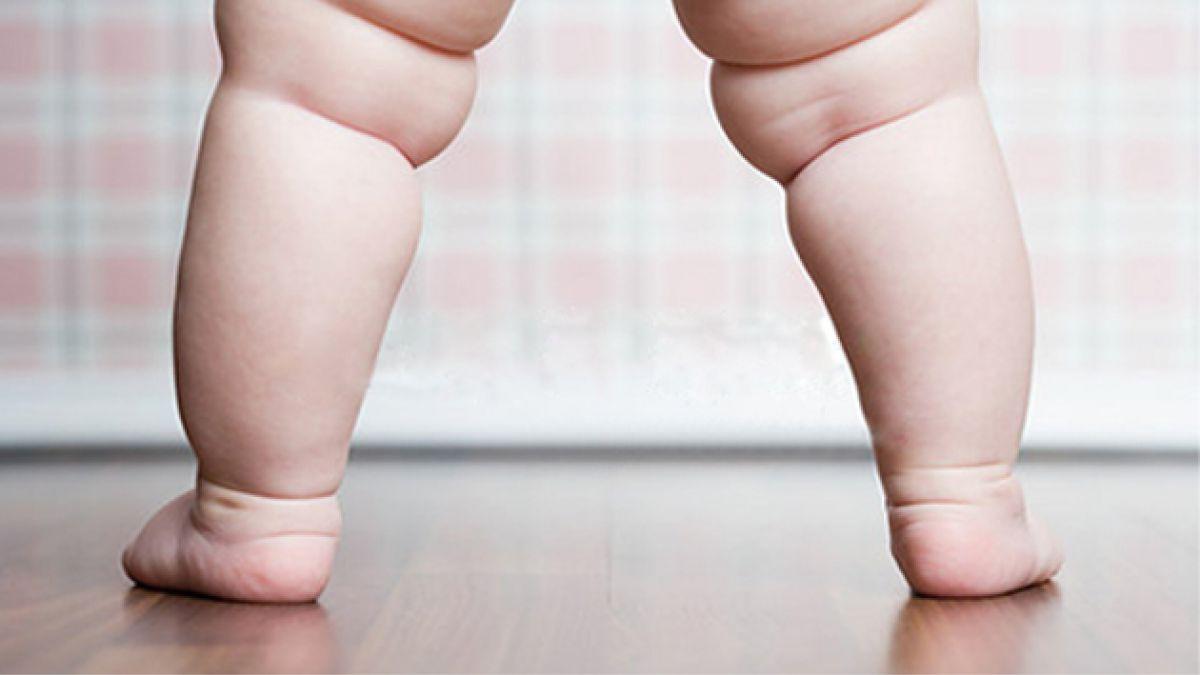 Radiografía a la obesidad infantil en la RM: 11 comunas de la zona sur superan el 10%