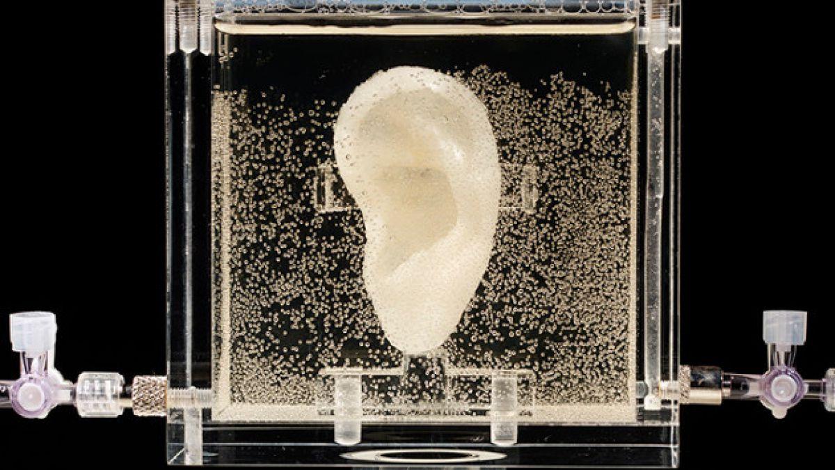 Así era la oreja que Van Gogh se cortó en 1888