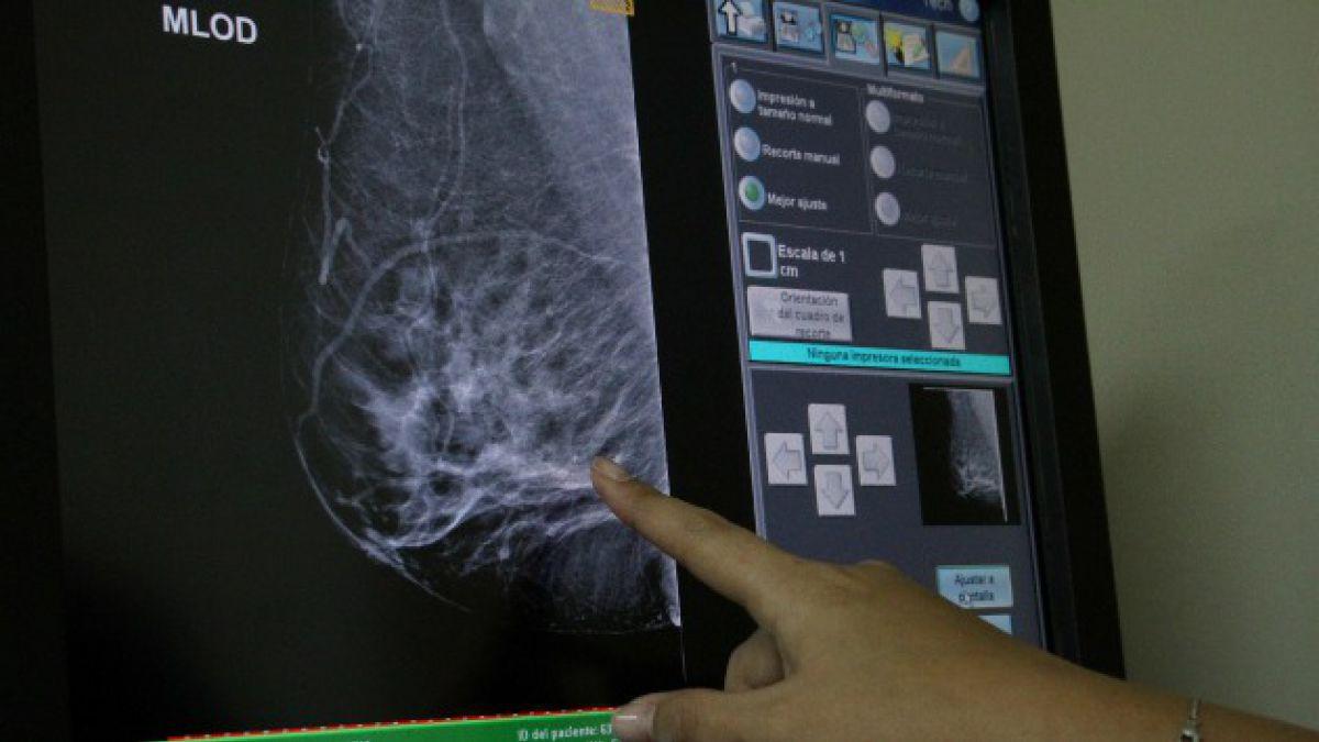 Justicia ordena a Minsal financiar y otorgar tratamiento para cáncer de mama