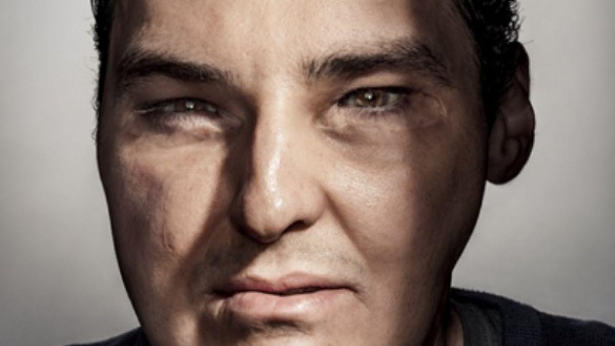 El impresionante cambio de Richard Norris tras su trasplante de rostro