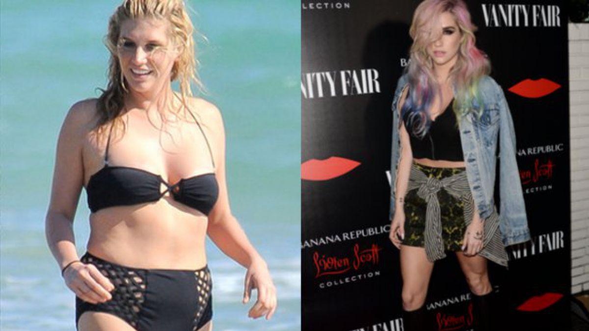 Kesha entra a rehabilitación por desorden alimenticio