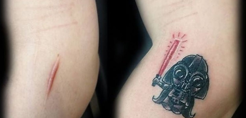 [FOTOS] Geniales y hermosos tatuajes para disimular cicatrices y marcas de nacimiento