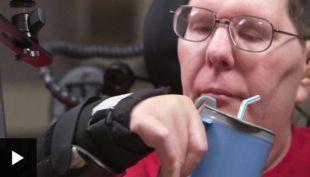 [VIDEO] Gracias a implantes en su cerebro un hombre paralizado logró comer y beber sin ayuda