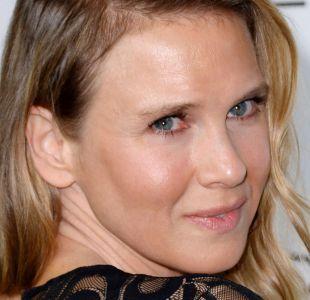 [FOTOS] 10 famosas que cambiaron sus rostros con cirugías o bótox