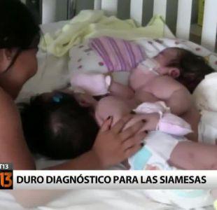 Duro diagnóstico para siamesas de Vallenar: No se podrán separar