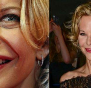 [FOTOS] Los cambios más sorprendentes de las estrellas de Hollywood tras la cirugía plástica