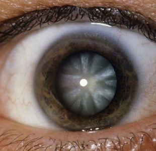 Google podría lanzar computador minúsculo que se inyecta en los ojos para ver mejor