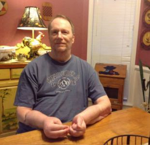 El arrepentimiento del hombre que recibió el primer trasplante doble de manos en Estados Unidos