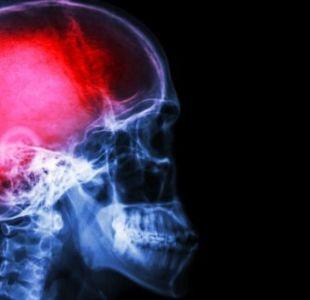 Los derrames cerebrales pueden ocasionar la condición.