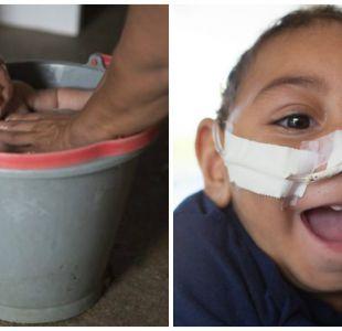 Cómo se encuentra Jose Wesley, el bebé que hace un año fue la cara del Zika
