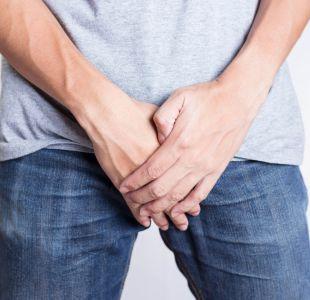Cómo detectar tempranamente un cáncer de próstata