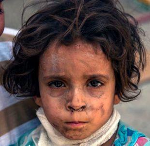 La dramática situación de los sobrevivientes de Mosul: Los niños han estado viviendo como ratones