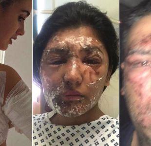 Por qué están aumentando los ataques con ácido en las calles de Reino Unido