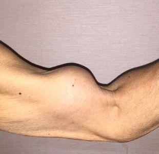 ¿Cuándo el brazo de Popeye deja de ser símbolo de fuerza y se convierte en algo indeseable?