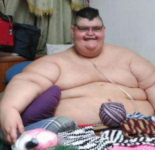 Pasear, sentir el aire, caminar: los sueños del hombre más obeso del mundo