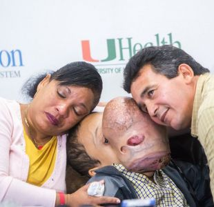 Murió Emanuel, el niño cubano con un gigantesco tumor en la cara que fue operado en Estados Unidos