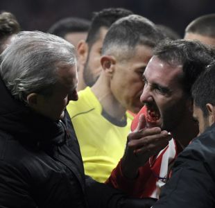Diego Godín vuelve a jugar tras perder tres dientes en un partido